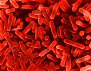 legionellabacterien
